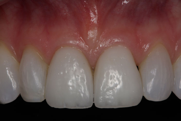 patient with a fractured tooth after veneers