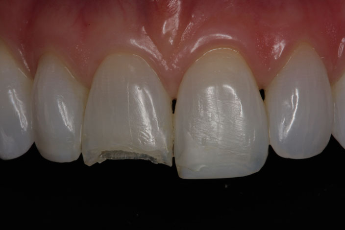 patient with a fractured tooth before veneers