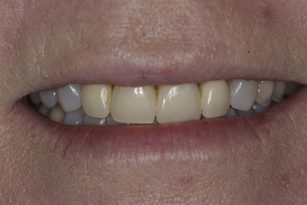 This patient did not like the color of the existing four front crowns.