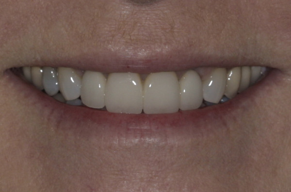 After teeth whitening, four new crowns were designed resulting in a more youthful appearance.