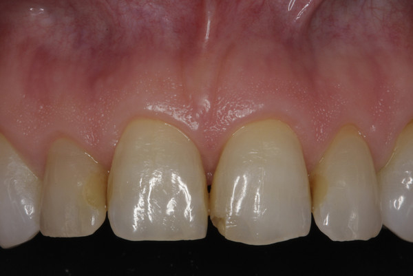 Worn edges, old and yellowed composite fillings, and an uneven smile plane prompted this patient to seek treatment.