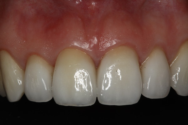 Anterior porcelain crowns were the answer! She reports smiling for the first time in years for photos!