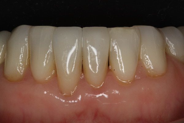 Chipped front bottom tooth after veneers