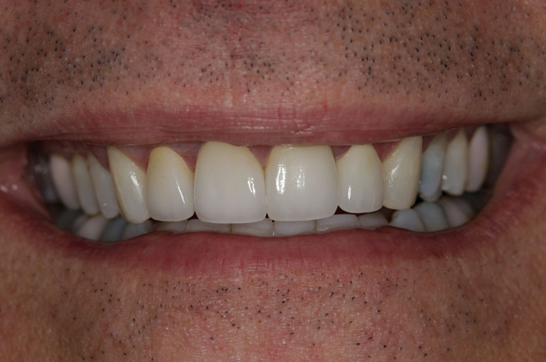 Patient after teeth whitening, porcelain crowns and composite restoration - D. Ian Bell, DDS in Bellevue, WA