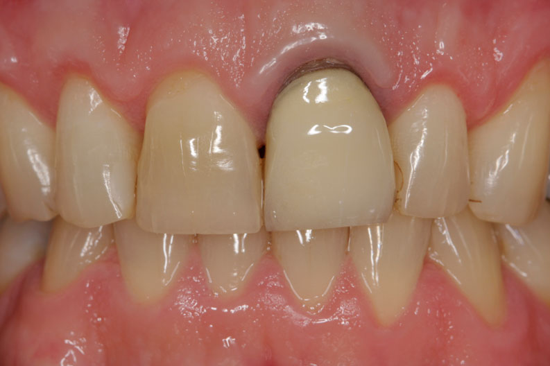 Surgical crown lengthening was performed to expose more of the tooth crown.