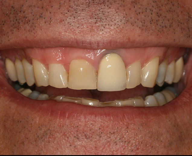 This patient presented with severely worn teeth, a poorly matching front crown and front teeth that are uneven in length.