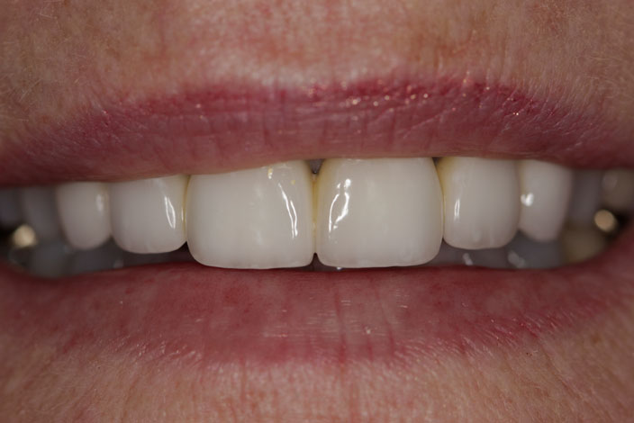 Patient with restored front teeth after porcelain crowns - D. Ian Bell, DDS in Bellevue, WA