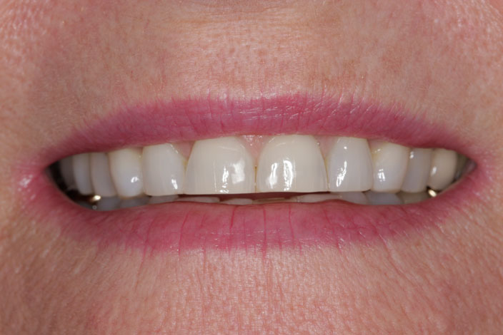 Patient with severely worn front teeth - D. Ian Bell, DDS in Bellevue, WA