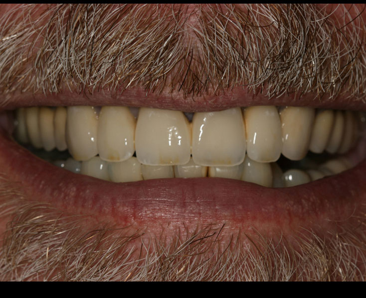 Patient after color matched dental crowns - D. Ian Bell, DDS in Bellevue, WA