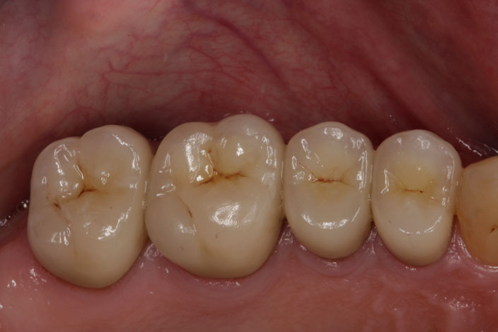 Posterior Porcelain Crowns 1 after