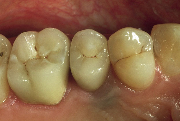 Posterior Porcelain Crowns 2 after
