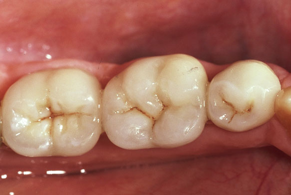 Posterior Porcelain Crowns 4 after