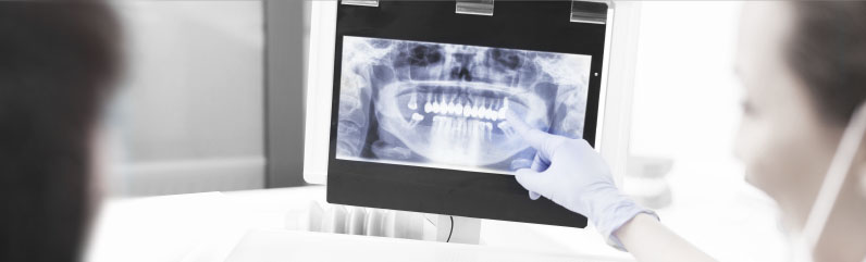 XRAY picture Ian Bell Dentist Family cosmetic Bellevue WA