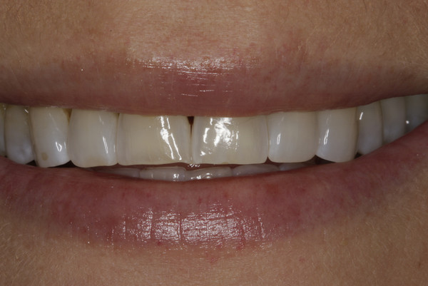 Patient before veneers - D. Ian Bell, DDS in Bellevue, WA
