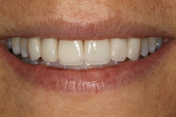 Patient after veneers - D. Ian Bell, DDS in Bellevue, WA