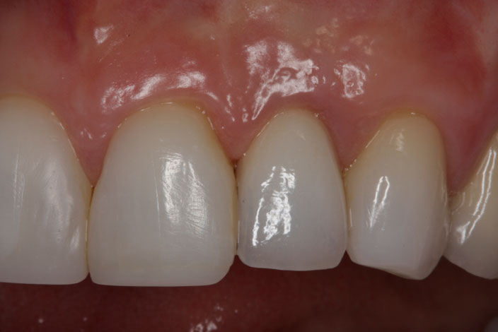 implant supported crown 1 after