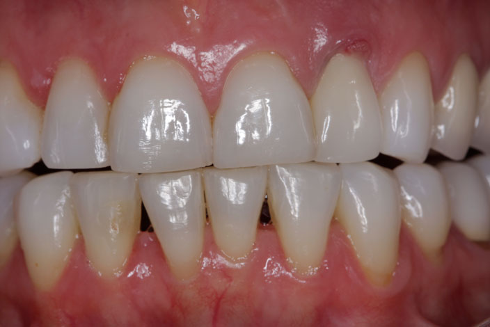 implant supported crown 1 before
