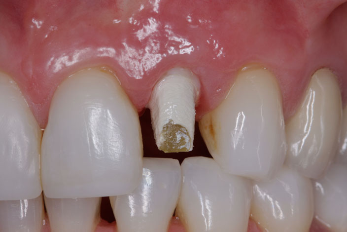 implant supported crown 1 during