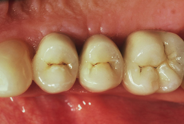 implant supported crown 2 after