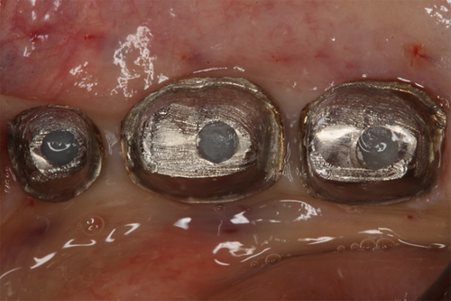 implant supported crown 3 before