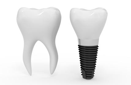 D  Ian Bell, D D S  - Implant Dentistry - Bellevue, WA